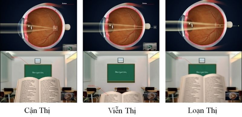 các loại tròng kính cận, cac loai trong kinh can, cac loai trong kinh, các loại tròng kính, tròng kính, các loại mắt kính cận thị